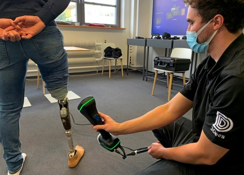 Scanning a prosthetic leg of a standing person with a 3D scanner