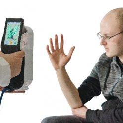 Uplatnění najde 3D skener také ve zdravotnictví díky schopnosti nasnímat geometrii a textury